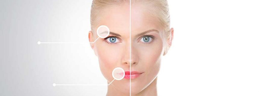 IPL-tretman-hiperpigmentacija